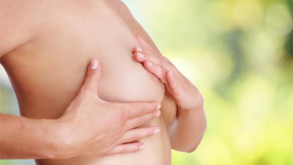 como fazer redução de mama pelo convenio